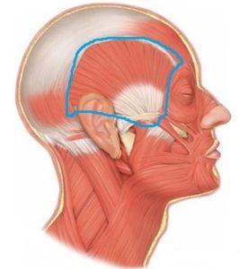 側頭筋 たるみ ほうれい線 浮腫み